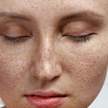 Pigmentation – Hate it?